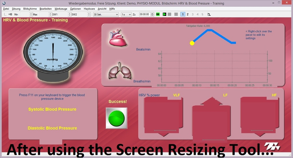 Screen Resizing Tool 05